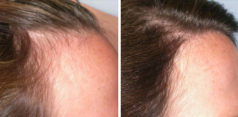 hair transplant for women before and after right temple recession grafts