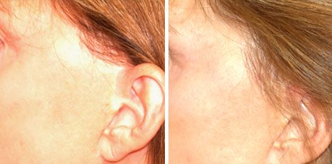 women sideburn before and after transplant image